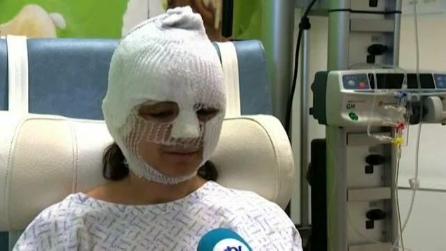 Fanny, rescapée, mais brûlée par l'explosion de l'aéroport de Bruxelles