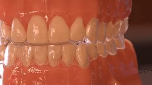 De plus en plus d'adultes vont chez l'orthodontiste pour se faire soigner les dents. (CAPTURE D'ÉCRAN FRANCE 2)