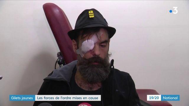"""""""Gilets jaunes"""" : Jérôme Rodrigues, blessé à l'œil, a porté plainte"""