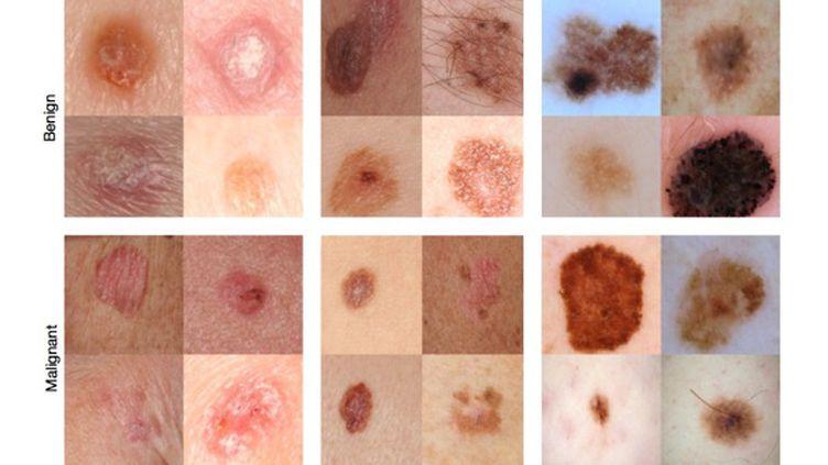 Cancers de la peau : quand l'ordinateur dépiste mieux que les dermatologues