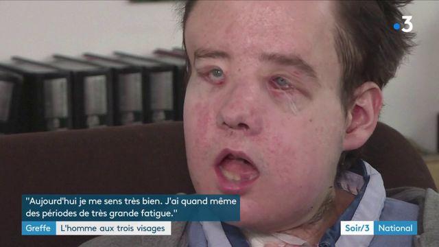 Santé : un homme subit une deuxième greffe de visage pour la première fois