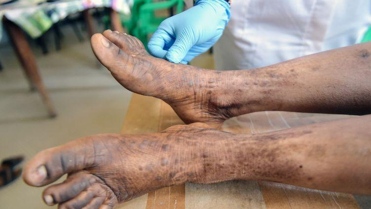Un dermatologue d'un hôpital d'Abidjan, en Côte d'Ivoire, examine les pieds abîmés d'une Ivoirienne s'étant dépigmenté la peau à l'aide de corticoïdes, le 11 mars 2019. (SIA KAMBOU / AFP)