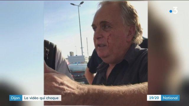 Dijon : une homme agressé face à plusieurs témoins immobiles