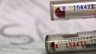 Pour valider un contrôle positif, l'échantillon B doit confirmer l'échantillon A. (FRANCK FIFE / AFP)