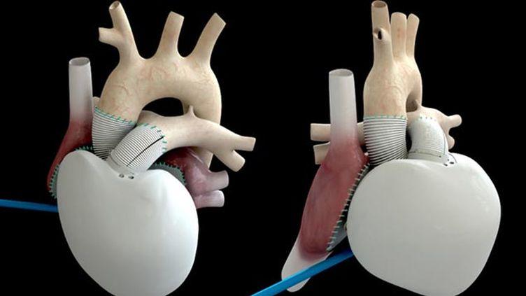 (Le type de coeur artificiel implanté à ce deuxième patient © Maxppp)