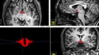 En rouge : l'hypothalamus, plus petit chez les femmes qui prennent la pilule. (Crédits Photo : © RSNA / Dr M. Lipton)