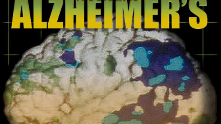(Désormais les neurologues ont deux moyens pour détecter la maladie d'Alzheimer © Maxppp)
