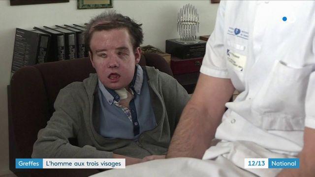 Santé : deuxième greffe du visage et première mondiale pour Jérôme Hamon
