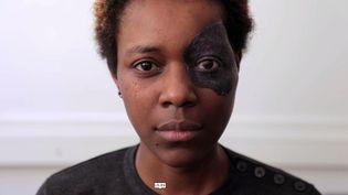 Prisca, mutilée après un cancer de l'œil, découvre la prothèse qui va lui offrir un nouveau visage (ENVOYÉ SPÉCIAL / FRANCE 2)