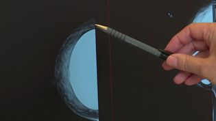 Cancer : de nouveaux traitements font leur apparition (Capture d'écran franceinfo)