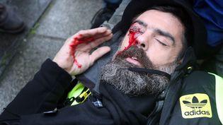 Jerome Rodrigues a été blessé le 26 janvier à Paris lors d'une manifestation. (ZAKARIA ABDELKAFI / AFP)