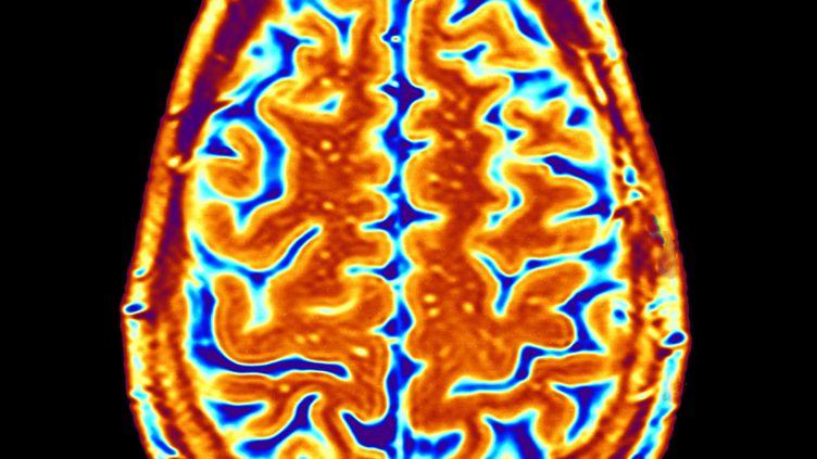 Une IRM d'un cerveau sain. (APA / AFP)