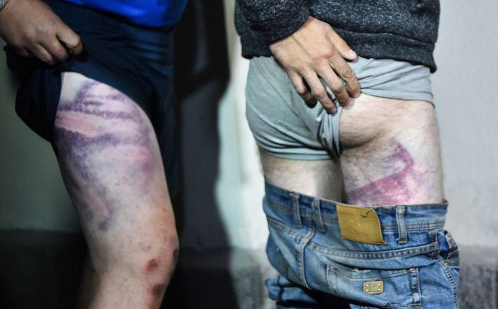 Deux hommes détenus après leur arrestation en marge de manifestations en Biélorussie montrent les marques des coups qu'ils disent avoir reçus en détention, à leur sortie de prison à Minsk, le 14 août 2020. (SERGEI GAPON / AFP)
