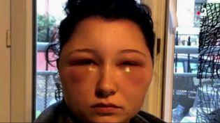 Une jeune femme vient d'alerter sur les dangers des colorations pour cheveux. Sur une photo diffusée sur les réseaux sociaux, on la découvre défigurée. (FRANCE 2)