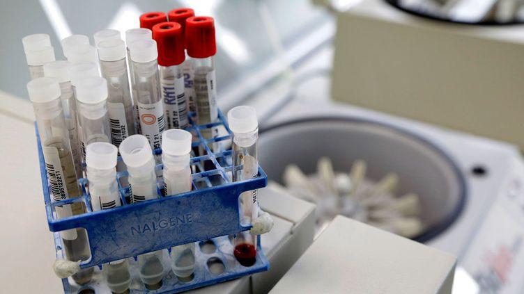 (Le Lupus touche 300 000 personnes en France dont 90% de femmes © Maxppp)