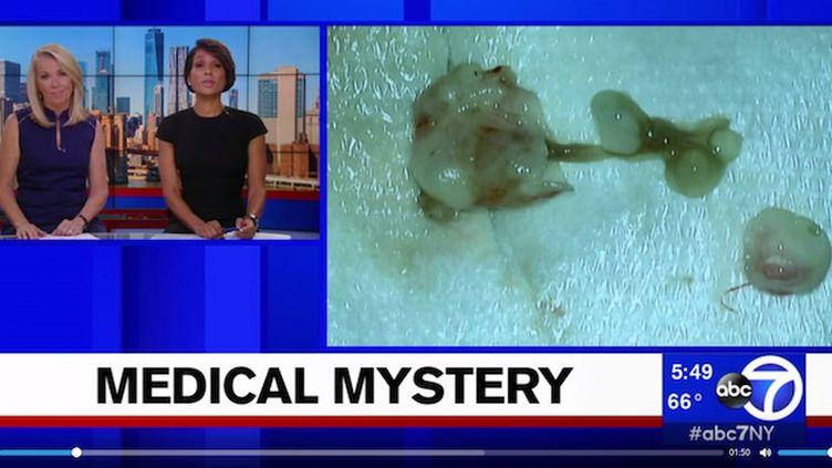 Elle pensait avoir une tumeur au cerveau… c'était un ver ! (© ABC7)
