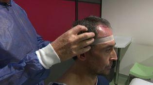France 2 a enquêté sur la greffe de cheveux. Un marché en expansion qui suscite l'avidité de certains professionnels. (France 2)