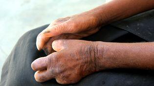 Lalèpre atteint les muscles etlesnerfs. (GREGOIRE POURTIER / AFP)