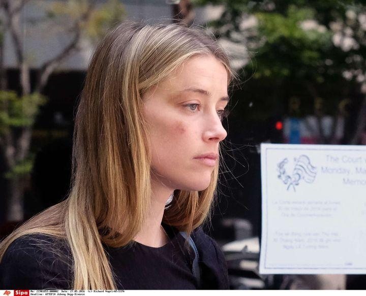 L'actrice Amber Heard quitte le tribunal de Los Angeles (Californie, Etats-Unis) avec un bleu à la joue, le 27 mai 2016. (RICHARD VOGEL / AP / SIPA)