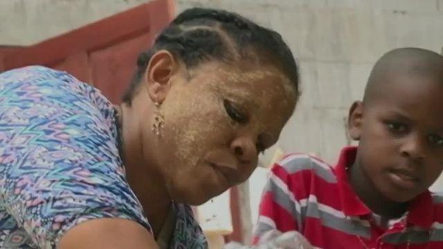 Mayotte : la grogne des femmes