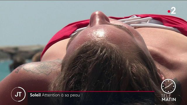 Santé : les dermatologues mettent en garde contre une exposition excessive au soleil