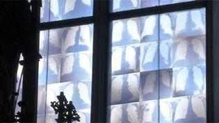 Des vitraux remplacés par des radiographies. (FRANCEINFO)
