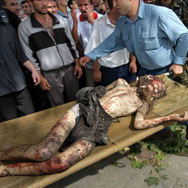Des volontaires sortent un garçon blessé de l'école de Beslan après l'assautdes forces de l'ordre contre les preneurs d'otages, le 3 septembre 2004. Cent cinquante-huit enfants ont été conduits à l'hôpital.   (AFP PHOTO / YURI TUTOV)