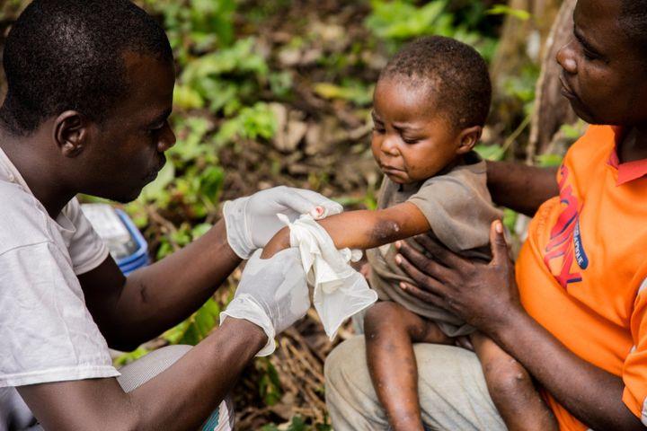 Un enfant atteint de la variole du singe, tenu par son père, est soigné dans un centre de Médecins sans Frontières (MSF) près de Lobaya,dans le sud-ouest de la Centrafrique, le 18 octobre 2018. (CHARLES BOUESSEL / AFP)