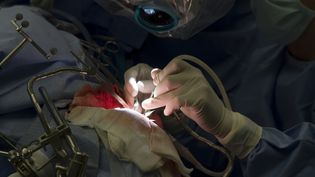 La patiente a subi une craniotomie éveillée, qui consiste à faire parler ou agir le malade pendant une opération du cerveau. (JOHN BRANSCOMBE / GETTY IMAGES)