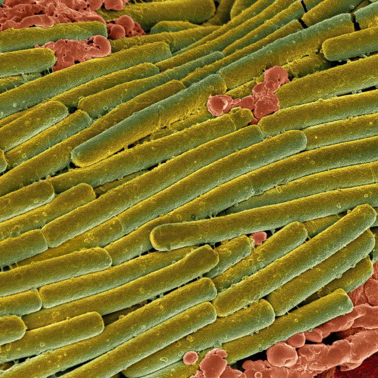 En vert, la bactérieClostridium difficile, vue au microscope électronique, le 15 février 2011. (SCIENCE PHOTO LIBRARY / GETTY IMAGES)