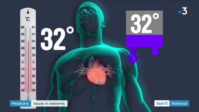 Montpellier : sauvé in extremis après 16h d'arrêt cardiaque