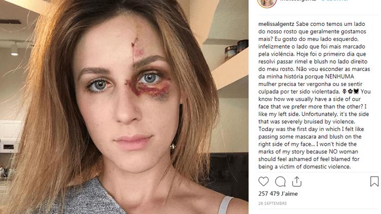 Capture écran du compte Instagram de Melissa Gentz, qui a publié une photo de son visage tuméfié le 26 septembre 2018. (MELISSA GENTZ / INSTAGRAM)