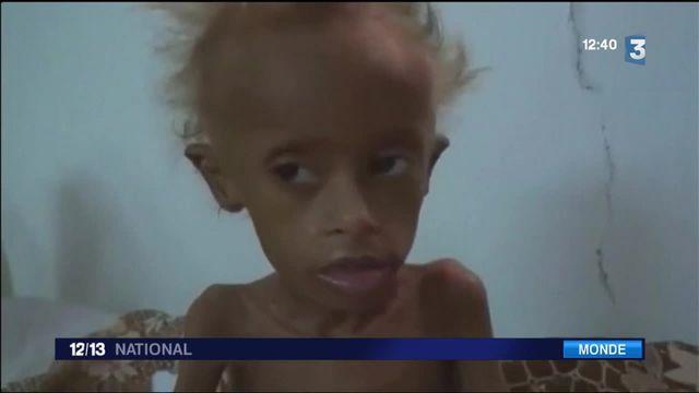 Yémen : plus d'un million d'enfants menacés par la malnutrition