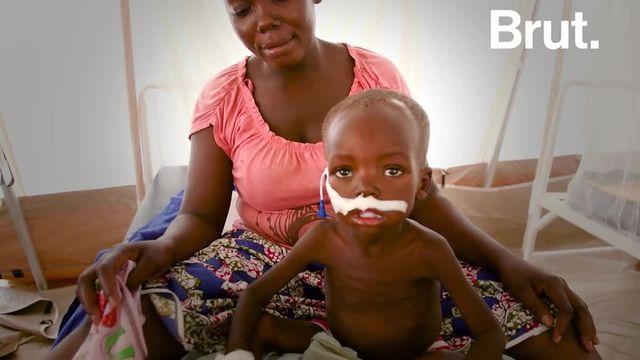 Dans la capitale tchadienne N'Djamena, des dizaines de milliers d'habitants souffrent de la faim, plus particulièrement les enfants, touchés par la malnutrition aiguë sévère. Les ONG la combattent, notamment en construisant des hôpitaux d'urgence. Reportage.