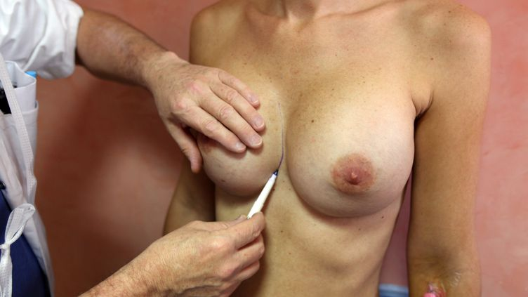 Un médecin ausculte une patiente avant de l'opérer pour lui retirer ses prothèses mammaires PIP, à Nice (Alpes-Maritimes), le 21 décembre 2011. (SEBASTIEN NOGIER / AFP)