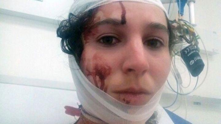Une des étudiantes blessées lors dela violente évacuation d'un amphithéâtre de la faculté de droit de Montpellier, dans la nuit de jeudi 22 mars à vendredi (CHLOE SANCHEZ / FRANCE BLEU)
