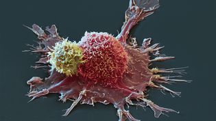 Cellule cancéreuse représentée en 3D. (MAXPPP)