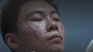 Dans l'Empire du Milieu, des milliers d'hommes passent, eux aussi, sous le bistouri. Ils subissent parfois de nombreuses opérations chirurgicales pour transformer leur visage. Leur objectif : répondre à des critères de beauté bien précis afin d'obtenir de meilleures offres d'emploi. (FRANCEINFO)