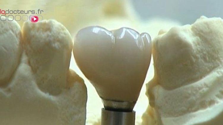 De la céramique pour les dents de devant, du métal pour les molaires…