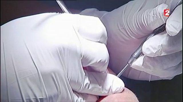 Soins dentaires : les nouveaux tarifs fâchent la profession
