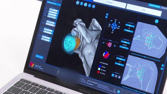 Chirurgie : la réalité virtuelle en renfort