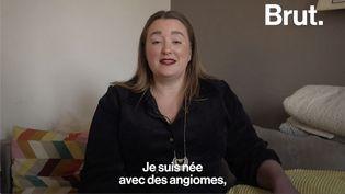 """VIDEO. """"C'est le regard des gens qui m'a toujours rappelé que j'étais différente"""", témoigne Julie (BRUT)"""