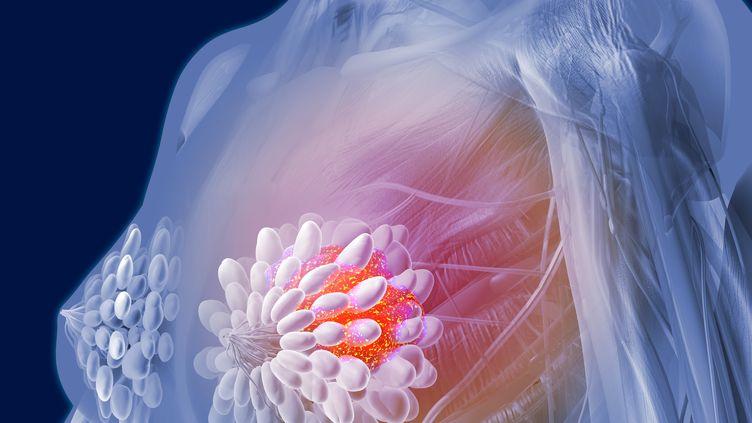 Représentation numérique d'une tumeur cancéreuse dans un sein. (AFP / ROGER HARRIS / RHR / SCIENCE PHOTO LIBRARY)