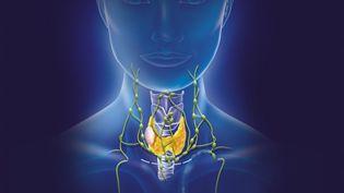 Illustration d'un nodule sur la glande thyroïde. (BSIP / UNIVERSAL IMAGES GROUP EDITORIAL / GETTY IMAGES)
