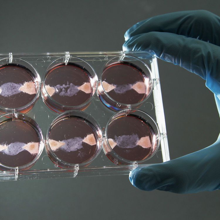 Un échantillon de viande in vitro à l'université de Maastricht (Pays-Bas), le 9 novembre 2011. (FRANCOIS LENOIR / REUTERS)