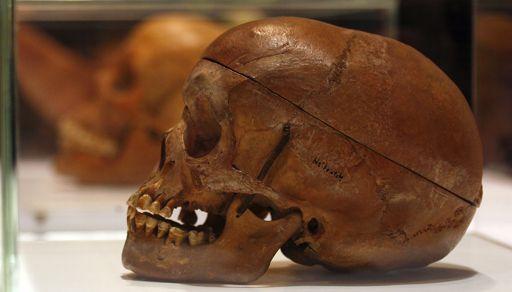 Crâne héréro ou nama montré à la faculté de médecine de la Charité à Berlin le 30 septembre 2011. Les autorités allemandes ont rendu 20 crânes de victimes de la répression menée en Namibie par la puissance coloniale allemande entre 1904 et 1907. (Reuters - Tobias Schwarz)