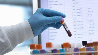 Desscientifiques de l'Université Edith Cowan, à Perth (Australie), affirment le 18 juillet 2018 avoir mis au point un test sanguin pour dépister le mélanome à un stade précoce. (ANDREW BROOKES / CULTURA CREATIVE / AFP)