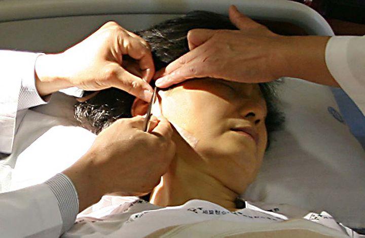 Park Geun-hye est soignée dans un hôpital de Séoul, en Corée du Sud, le 26 mai 2006, après avoir été attaquée à l'arme blanche. (DONG-A ILBO / AFP)