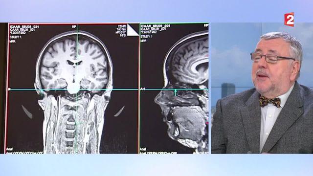 AVC : les symptômes qu'il faut savoir détecter