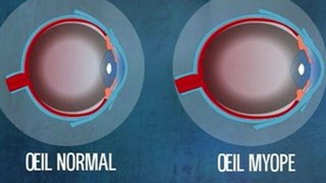 L'opération au laser : une solution à la Myopie